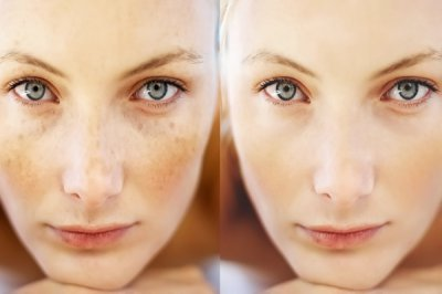 Лечение гиперпигментации на лице