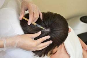 Плазматерапия волос в ЛСКЛИНИК